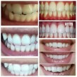the best whitening toothpaste